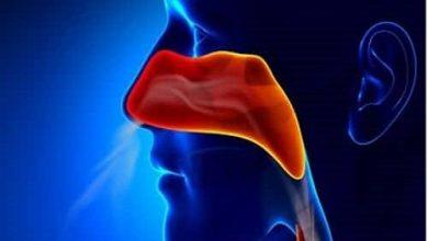 صورة وصفات لعلاج إلتهاب الجيوب الأنفية